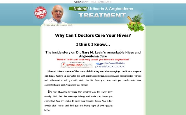 Natural Urticaria & Angioedema Treatment System Review - What are the Benefits?