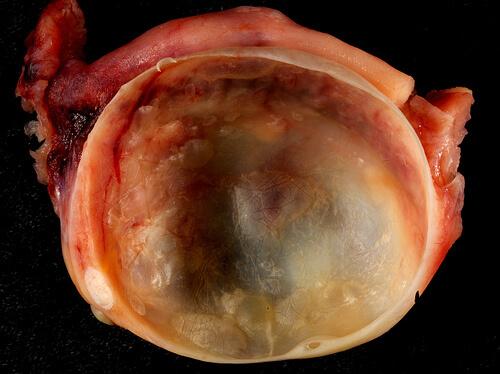 ovarian cyst photo