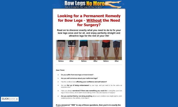 Bow Legs No More by Sarah Brown Review - What are the Benefits?