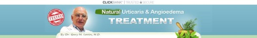 Get Natural Urticaria & Angioedema Treatment System
