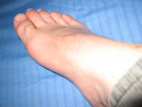 foot pain photo