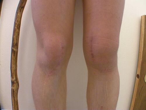 knee photo