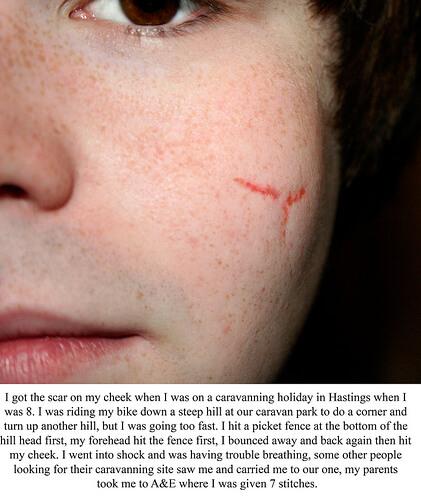 face scar photo