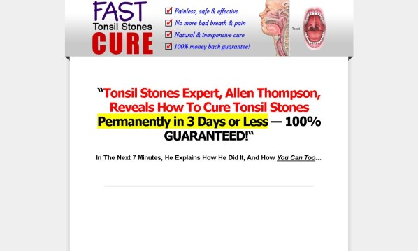 Fast Tonsil Stones Cure Review: The Pros & Cons