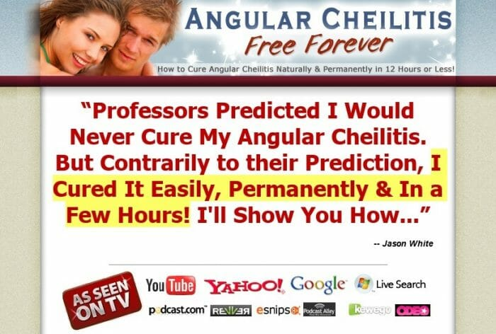 Angular Cheilitis Free Forever Honest Review