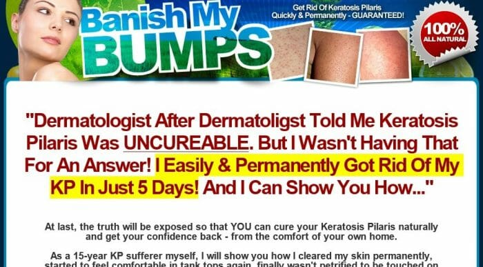 Banish My Bumps Review - Does it Really Work?