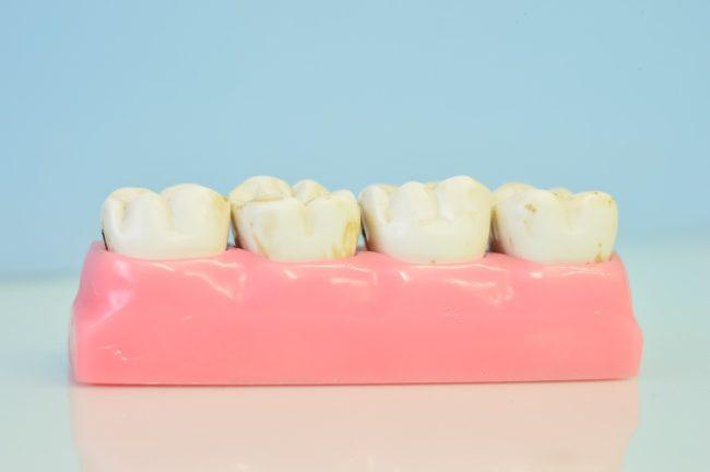 teeth photo